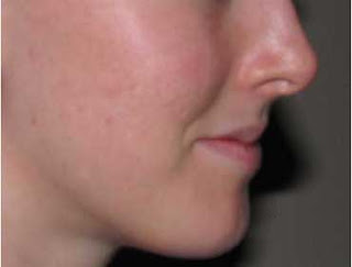 acne_treatment_after_photo