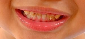 bad_teeth_590_b